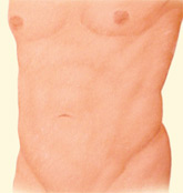 liposuction after picture miami