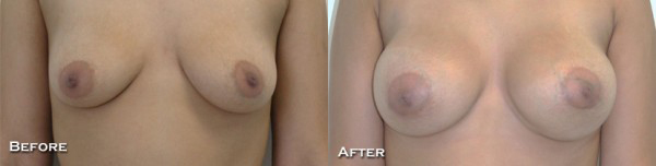 Breast Augmentation Before & After - Dr. Thomassen