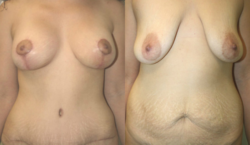 Breast Lift Before & After - Dr. Thomassen