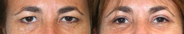 Eyelid Surgery Before & After - Dr. Thomassen