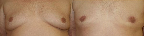 Male Breast Reduction Before & After - Dr. Thomassen