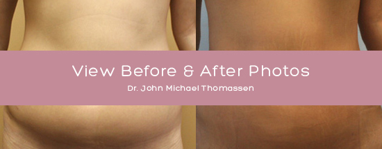 Before & After Plastic Surgery Photos, Plastic Surgery in Fort Lauderdale